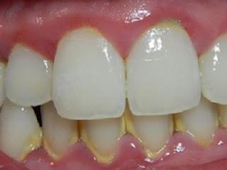 Cách loại bỏ cao răng, mảng bám đơn giản