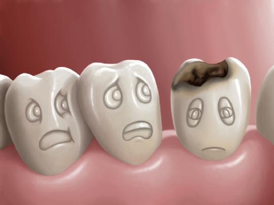 Biểu hiện của bệnh sâu răng