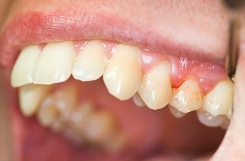 Viêm nướu (lợi) răng