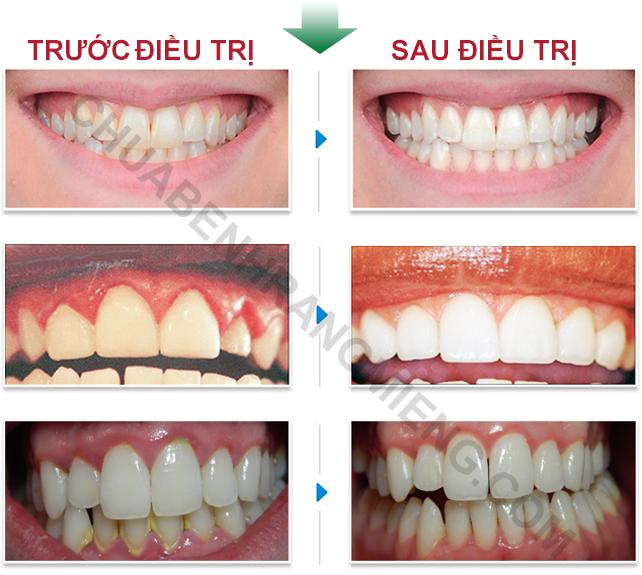 Trước và sau điều trị bằng nha chu tán