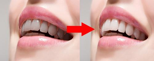 4 Cách làm trắng răng hiệu quả nhất tại nhà