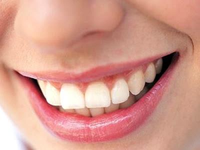 Chảy máu chân răng là dấu hiệu quả bệnh gì?
