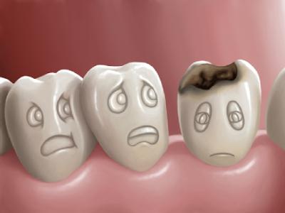Triệu chứng bệnh sâu răng không chỉ là các lỗ trên răng