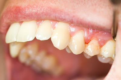 Bị chảy máu chân răng là dấu hiệu của bệnh gì?
